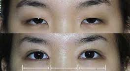 asian-epicanthic-eye-fold-before-and-after