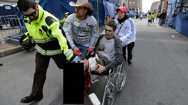 boston-marathon-man-leg-destroyed