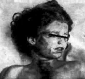 mary-phagan-autopsy-photo-1913
