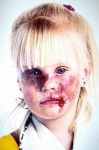 white-blond-little-girl-beaten-face-rsa